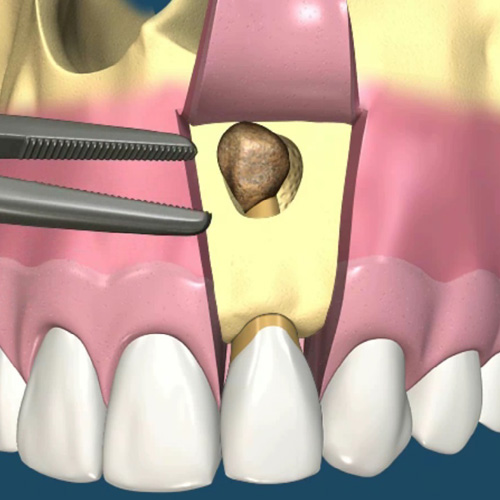 implantologia-studio-donadio-napoli-chirurgia-orale