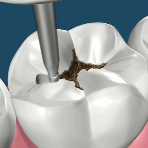 implantologia-studio-donadio-napoli-conservativa