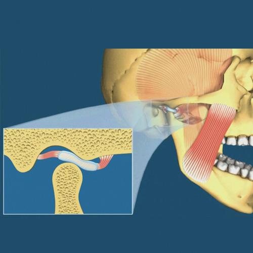 implantologia-studio-donadio-napoli-dentista