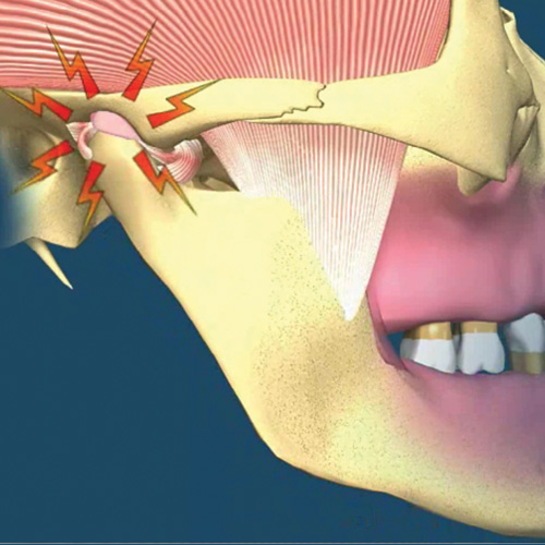 implantologia-studio-donadio-napoli-odontoiatra