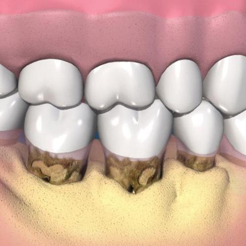implantologia-studio-donadio-napoli-igiene-orale