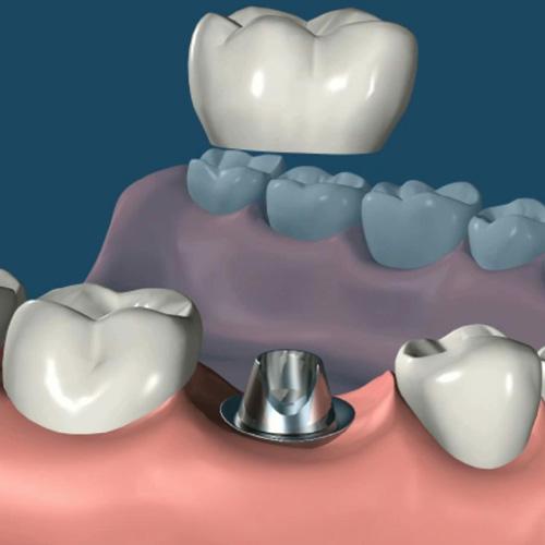 implantologia-studio-donadio-napoli-impiantologia