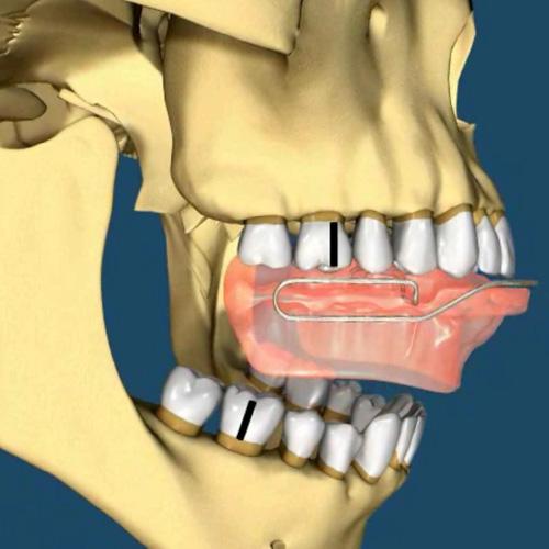 impiantologia-studio-donadio-napoli-ortopedia