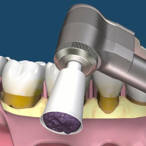implantologia-studio-donadio-napoli-paradontologia
