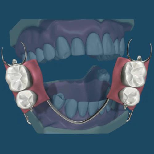 implantologia-studio-donadio-napoli-protesi