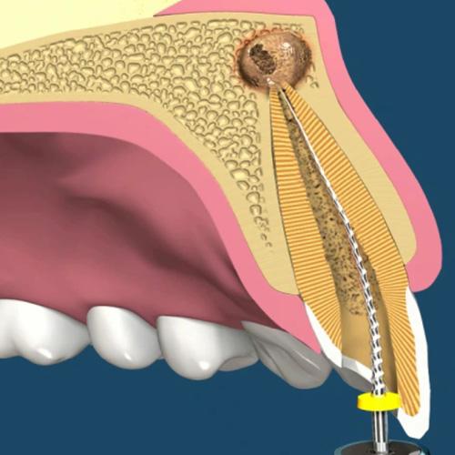 implantologia-studio-donadio-napoli-endodonzia