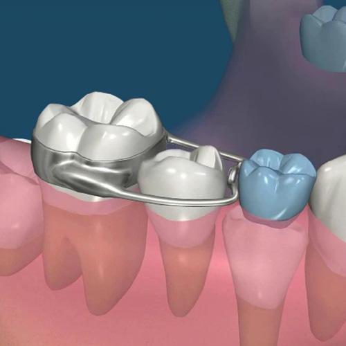implantologia-studio-donadio-napoli-andi-odontiatria-infantile