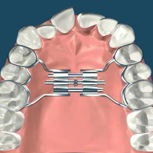 implantologia-studio-donadio-napoli-infantile-odontoiatria