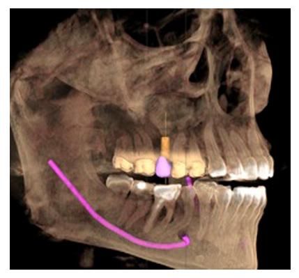 prevenzione-studio-dentistico-donadio-napoli-dentista-salerno-torre-annunziata-andi-campania-sprevestudio-dentistico-donadio-napoli-dentista-salerno-torre-annunziata-andi-campania-sbiancamento-radiologiabiancamento-radiologia